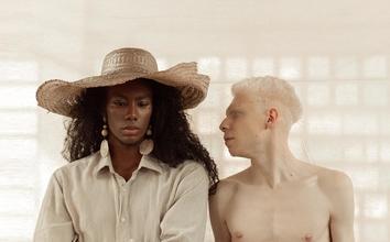 Se necesitan chicos albinos de 18 a 22 años  para figuración en Madrid