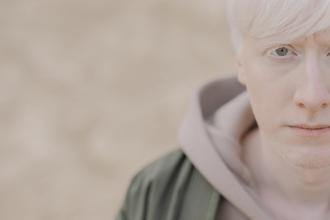 Se buscan personas albinas de 16 a 45 años para película en Sevilla